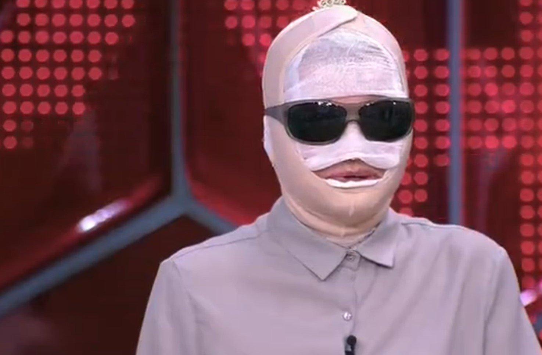 Екатерина Терешкович появилась на шоу с забинтованным лицом